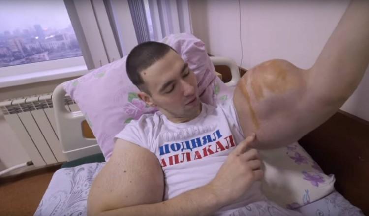 MMA: Popeye, le combattant russe, va se faire opérer pour dégonfler ses énormes biceps