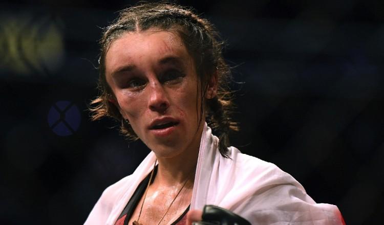 UFC: défigurée, Jedrzejczyk revient sur sa terrible blessure après son dernier combat