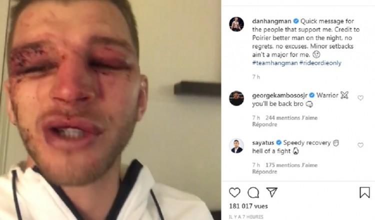 UFC: Poirier et Hooker bien amochés après leur combat spectaculaire